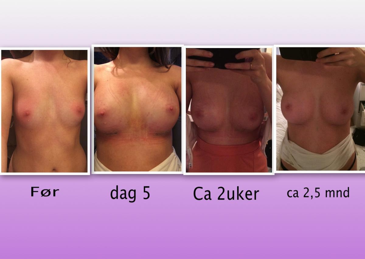 topic silikon slike bryster