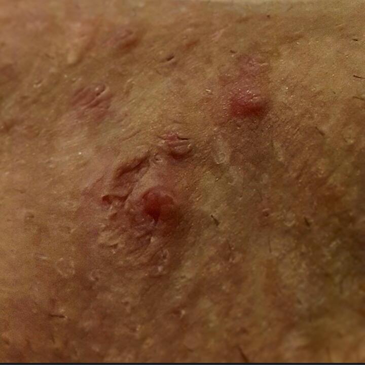 Kvinnens kjønnsorgan hvordan fingreglv