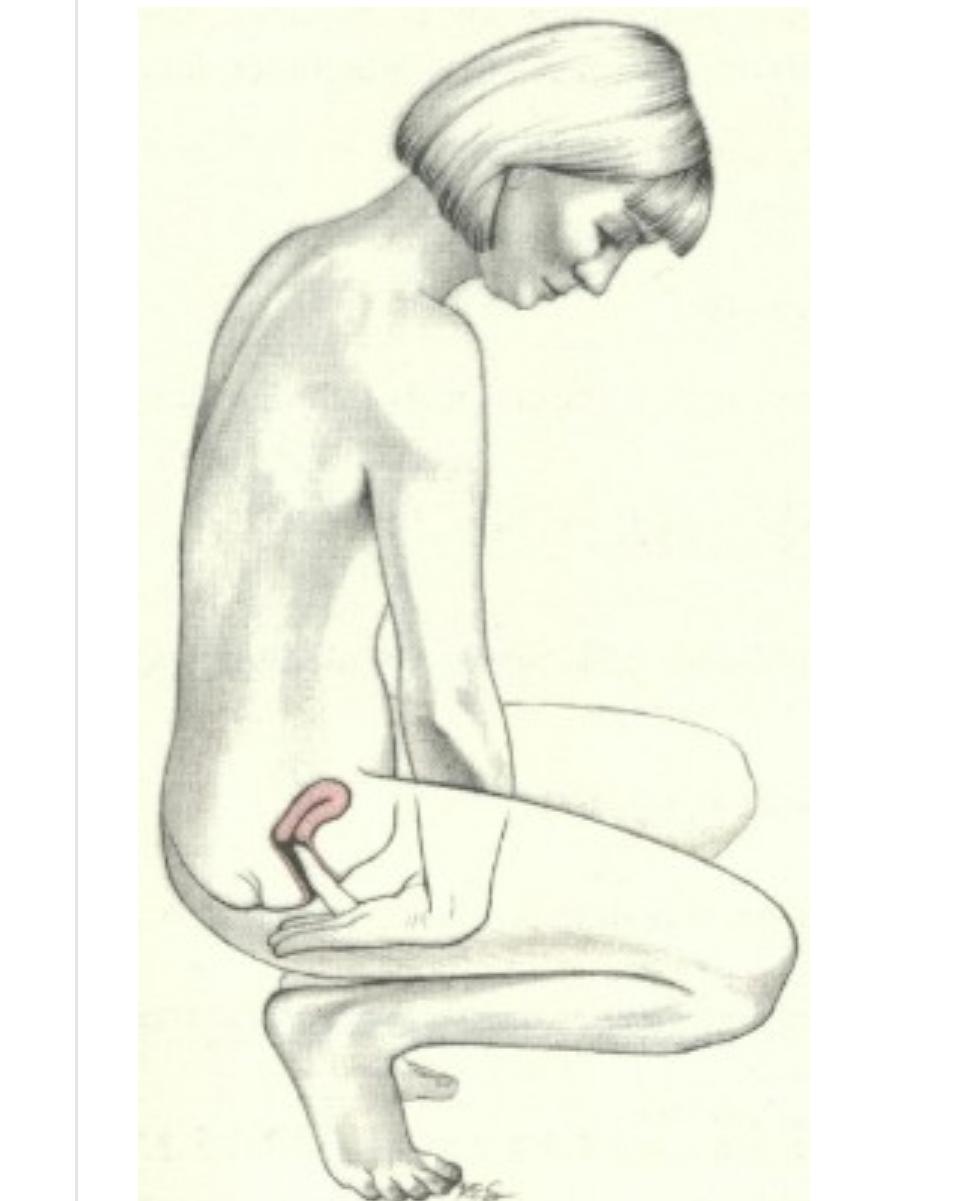 skjedeåpning livmortappen gravid