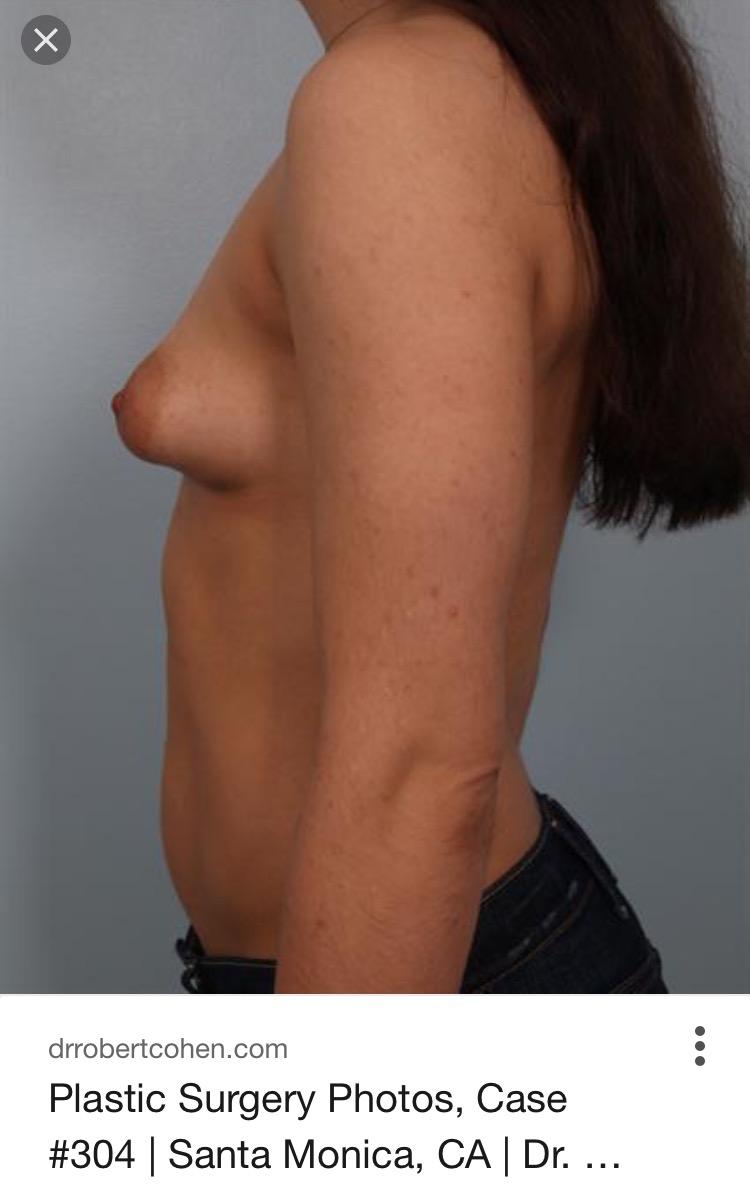 underutviklet bryst
