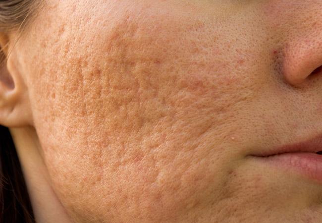 acne-scars.jpg.138177beb40019242bf3d074035e8f0e.jpg